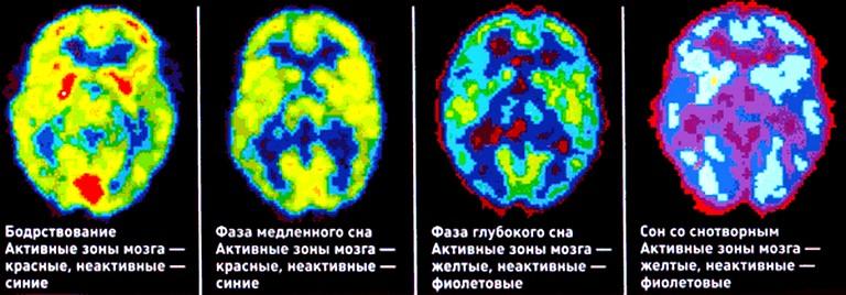 фазы активности головного мозга